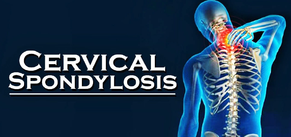 Cervical-Spondylitis-Specialist-in-Gurgaon